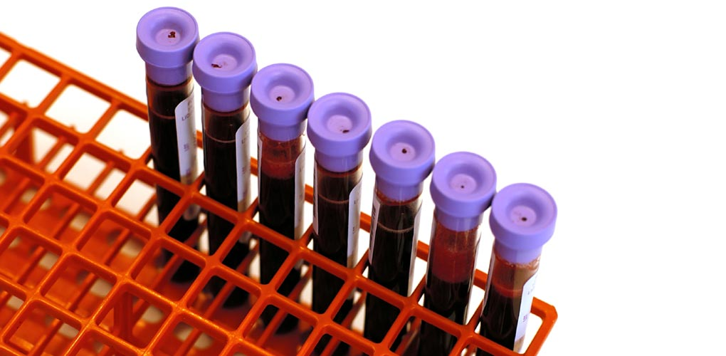 Melbourne Haematology - Clinical and Laboratory Trained Haematologists